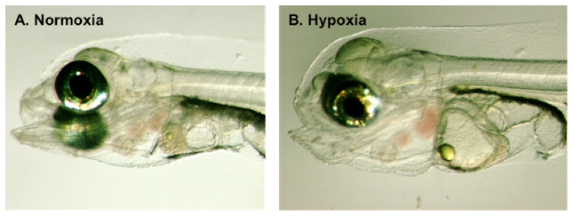 (A) Normal gopher rockfish larva at birth, gestated in ambient oxygen conditions (i.e., normoxia = 8 mg L-1 dissolved oxygen). (B) Deformed larva gestated in low oxygen conditions of 4.0 mg L-1 dissolved oxygen, showing enlarged heart, pericardial edema, and enlarged gut cavity.